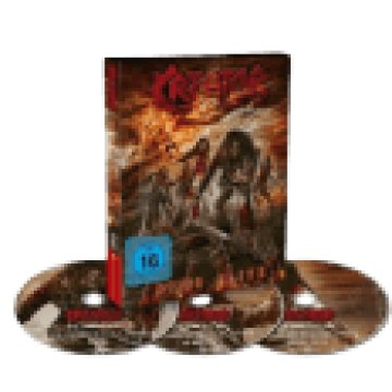 Dying Alive (Limited Edition Digipak) CD+DVD